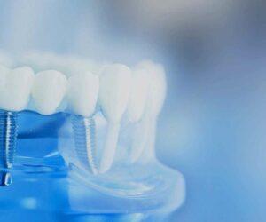 Diş Büyüsü Nedir?
